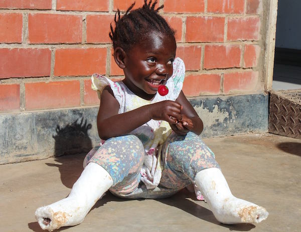 A child recovers from clubfoot treatment. Image courtesy of CURE International.